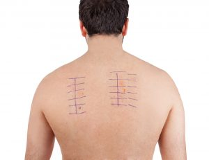back of man with skin test chart | Sacramento ENT